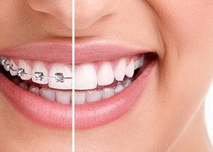 """ortodontiya001 Стоматология в Лазаревском для всей семьи - """"Асти"""""""