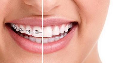 ortodontiya001