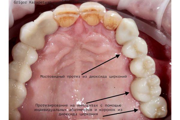 protezirovanie na implantatakh 1 after1 Протезирование зуба